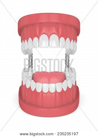 3D Render Of Jaw Model With Teeth Over White