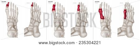 X-ray Collection Of Big Toe Foot Bone With Red Highlights On Different Pain And Joint Area-top And S