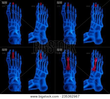 X-ray Blue Film Collection Of Big Toe Foot Bone With Red Highlights On Different Pain And Joint Area