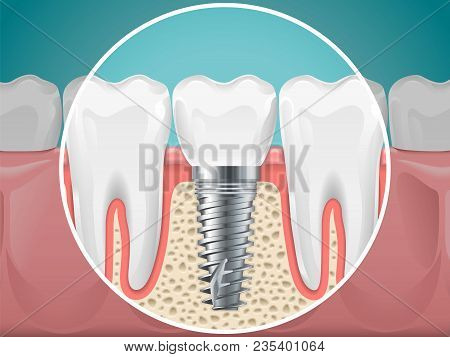 Stomatology Illustrations. Dental Implants And Healthy Teeth. Vector Health Tooth And Implant Stomat