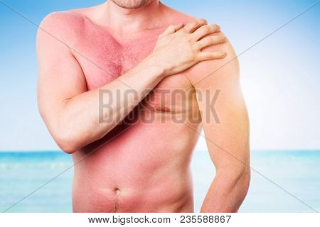 Man With Damaged Skin From The Sun, Sunburn