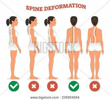 Spine Deformation Types And Healthy Spine Comparison Diagram Poster With Back Bone Curvatures. Femal