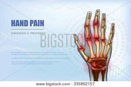 Osteoarthritis Or Rheumatoid Arthritis Hand Sore Joints Concept. Realistic Bones Of Hand Skeleton. H