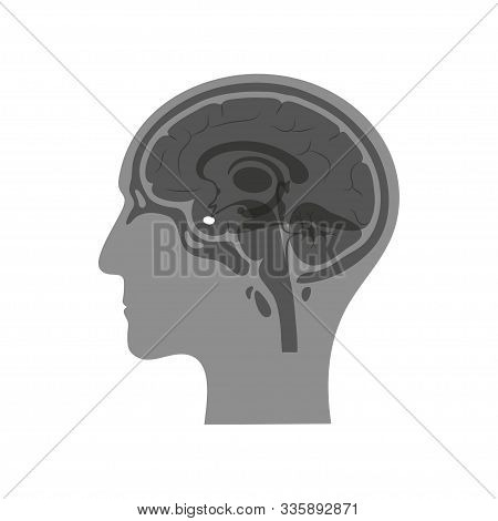 Vector Isolated Illustration Of Pituitary Gland In Man Head. Human Brain Components Detailed Anatomy