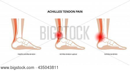 Achilles Tendon Rupture, Tendinitis Anatomical Poster. Ankle Injury, Ligament Sprain, Inflammation,
