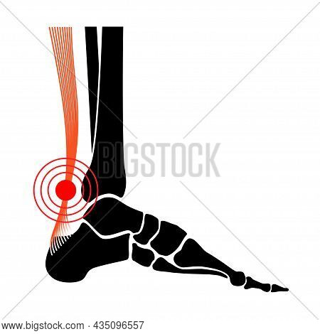 Achilles Tendon Rupture, Tendinitis Or Legs Inflammation Anatomical Poster. Ankle Injury, Ligament S