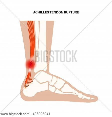 Achilles Tendon Rupture Anatomical Poster. Ankle Injury, Ligament Sprain And Tear Problems. Trauma I