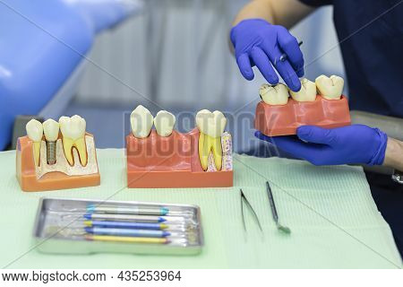 Training, Education, Practicing Dentist Work. Demonstration Model Of Tooth, Stump, Implant, Prosthes