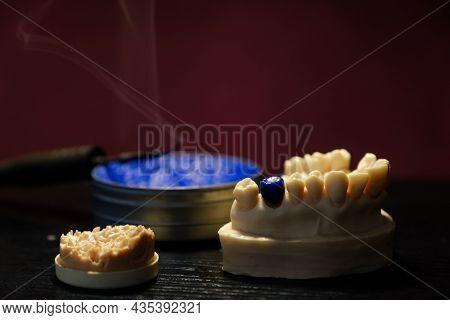 Dental Technician Work. Prosthesis Production. Dental Still Life