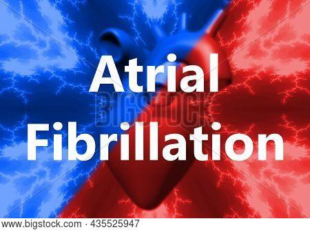 Letter Atrial Fibrillation, Human Heart Abnormal Heart Rhythm. 3d Rendering