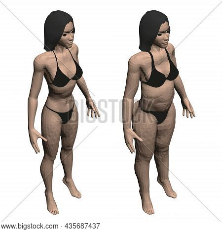 Two Model Girls In Underwear, A Slim And Fat Girl. The Process Of Obesity Of The Girl Body. Isometri