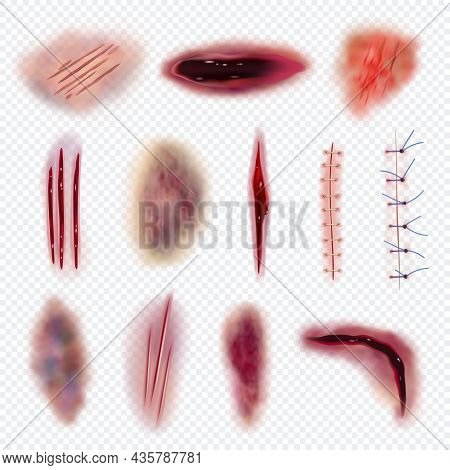Body Bruises. Injured Realistic Wound Bloody Gashes Cuts And Scars Decent Vector Isolated Set