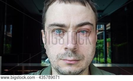 Portrait Of Man With Swollen Eye, Suffers From Conjunctivitis. Male Disease With Severe Bloodshot Re