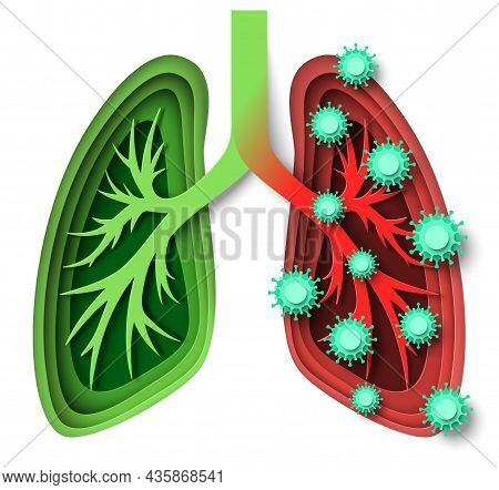 Human Lungs Healthy And Infected With Virus, Vector Paper Cut Illustration. Coronavirus Infection, P