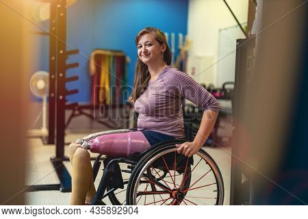 Woman with prosthetic legs in wheelchair