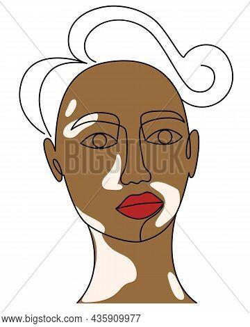 Face Of A Black Man With Vitiligo Line Art. Female Or Male Portrait With Pigmented White Spots. Auto