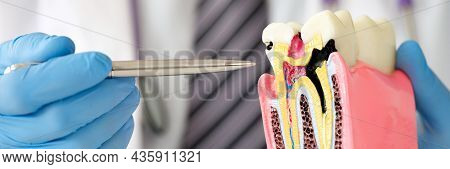 Dentist Doctor Showing With Pen Caries On Dummy Tooth Closeup