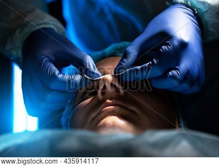 Doctor Plastic Surgeon Conducts An Operation Of A Female Patient To Reduce The Shape Of The Nose, Rh