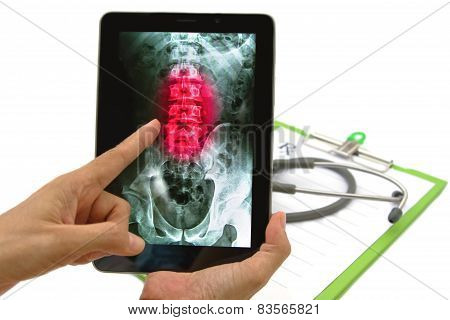 Doctor Looking Lumbar Spine X-ray Image On Tablet For Medical Exam