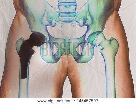 Hip replacement. Xray. Human anatomy. 3D illustration