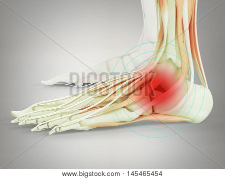 Human anatomy ankle or foot injury or pain. 3D Illustration.