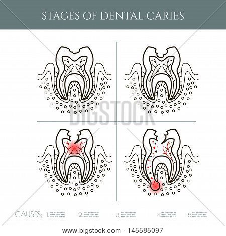Dental caries stages.Dental infographic.. All objects are conveniently grouped and are easily editable.