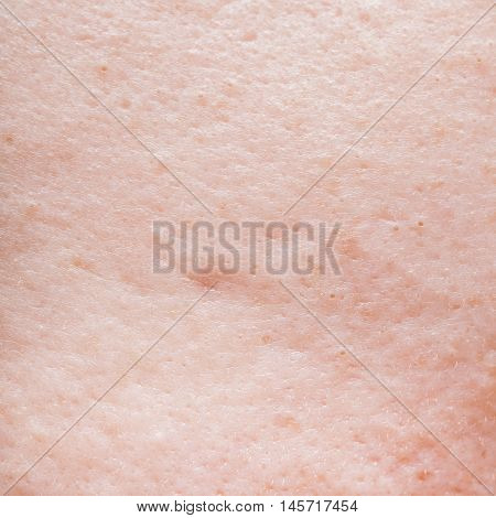 Background of human face skin super macro texture