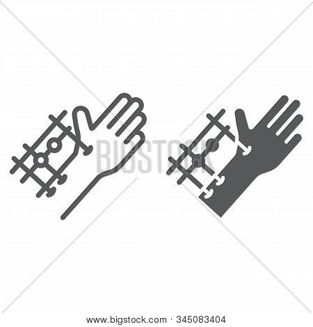 Fixation Joints Surgery Line And Glyph Icon, Medical And Equipment, Hand Surgery Sign, Vector Graphi