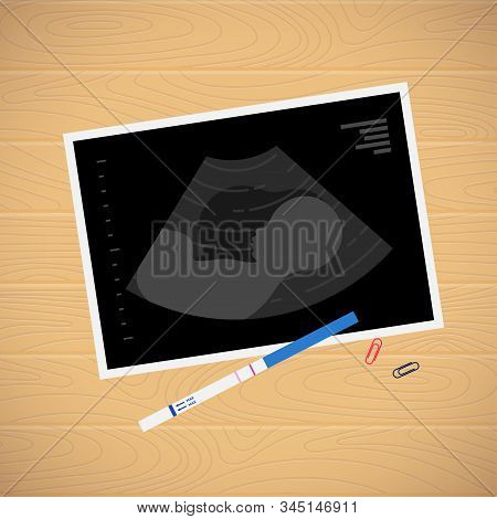 Baby Ultrasound Picture And Positive Pregnancy Test On Table Top View Flat Vector Illustration. Fetu