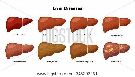 Healthy Liver And Liver Diseases - Fatty Liver, Hepatitis, Fibrosis, Cirrhosis, Alcoholic Hepatitis,