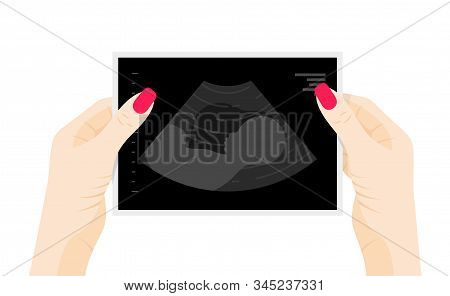 Baby Ultrasound Picture In Womans Hands Flat Vector Illustration. Fetus Silhouette In Mother Womb, P