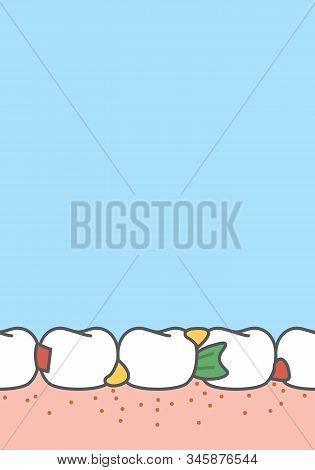 Blank Banner Food Stuck In Teeth Frame Cartoon Style For Info Or Book Illustration Vector On Blue Ba