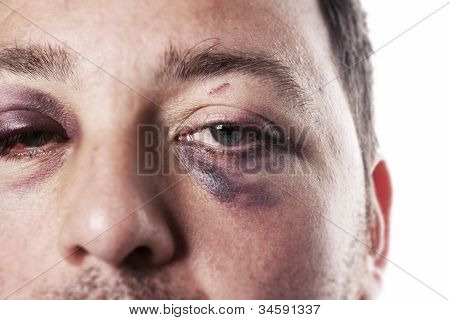 eye injury male with black eye isolated on white after accident or fight with bruise poster