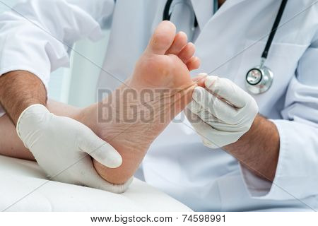 Doctor dermatologist examines the foot on the presence of athlete's foot poster