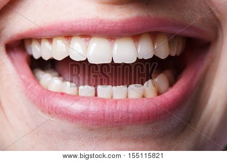 dentistry, mouth and teeth close up smiling
