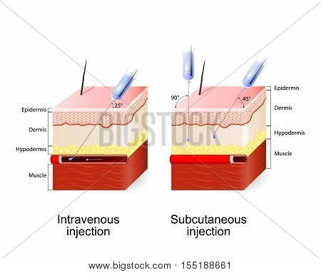 Intravenous therapy and Subcutaneous injection. Angle and depth of injections