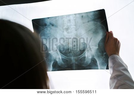 Female doctor examining pelvis x-ray in hospital office medical professional in white uniform analyzing hip image in clinic.