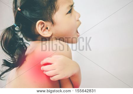 Health problem. asian young girl scratching her itchy back