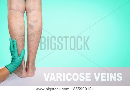 Lower limb vascular examination because suspect of venous insufficiency. The female legs on blue background poster