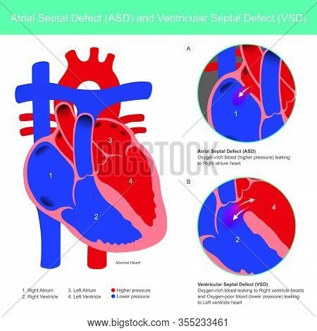 Atrial Septal Defect (asd) And Ventricular Septal Defect (vsd). Abnormal Of The Heart Atrial And Hea