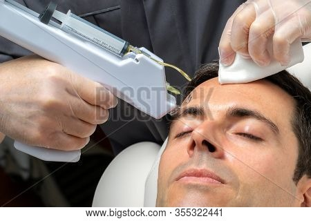 Macro Close Up Middle Aged Man Having Cosmetic Facial Plasma Lift On Forehead With Micro Needle Gun.