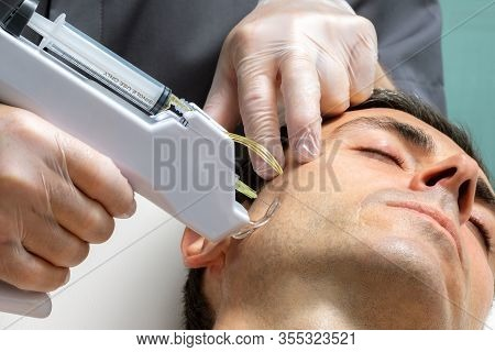 Macro Close Up Middle Aged Man Having Cosmetic Facial Plasma Lift On Cheek With Micro Needle Gun.