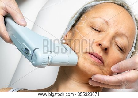 Top View Of Middle Aged Woman Having Cosmetic Facial High Intensity Focal Ultrasound Treatment On Ch