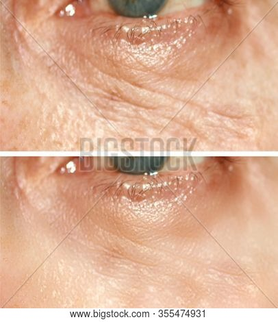 Wrinkles Under The Eyes. Wrinkles On The Skin Of The Face. Flabby Eyelids. Before And After Treatmen