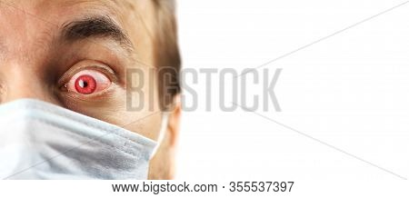 Isolated Close-up Man Face With Red Eye And Medical Mask, Infected Patient Looks With Fright, Virus