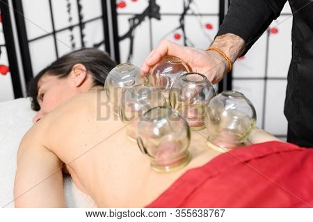 Traditional Chinese Medicine Therapy. Cupping Therapy, A Treatment Used For Pain Relief And Other He