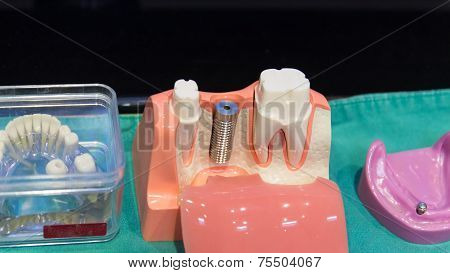 The Implant Substructure Teeth Model