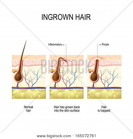 Ingrown hair after hair removal and shaving. buried hair. structure of the hair follicle