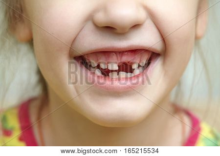 Childish smiling mouth with missing milk teeth