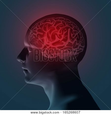 Healthcare and migraine concept. Headache pain. Medical vector illustration